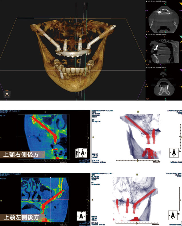 case03.オールオン4ザイゴマインプラント術後CT画像