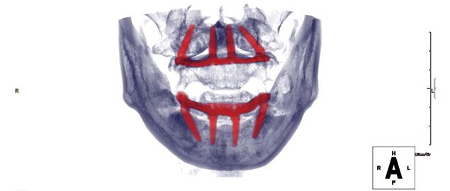 case02.術後CT画像