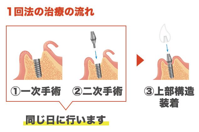 インプラント治療1回法の流れ
