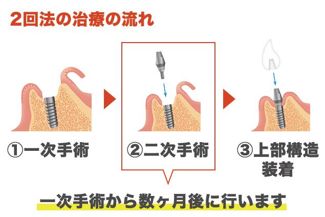 インプラント治療2回法の流れ