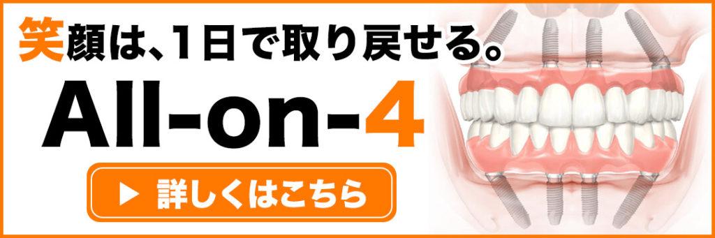 オールオン4インプラントバナー