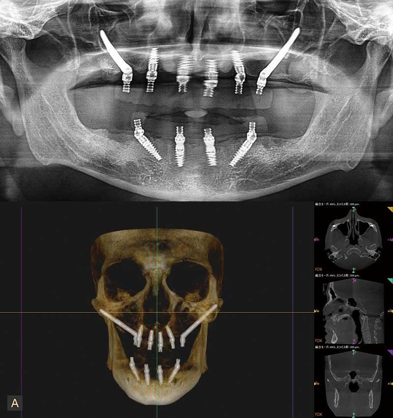 case04.上下顎オールオン4ザイゴマインプラント術後画像