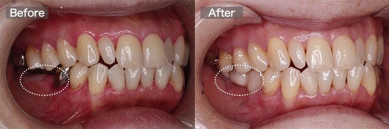 case07.右側インプラント術前術後の写真