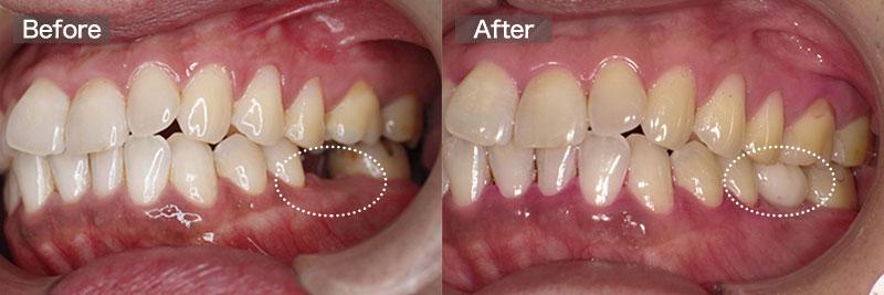 case08.インプラント術後の左側画像