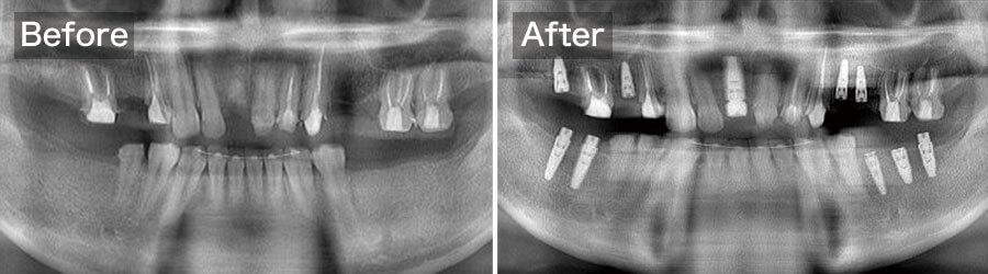 case09.インプラント手術前後のパノラマレントゲン写真