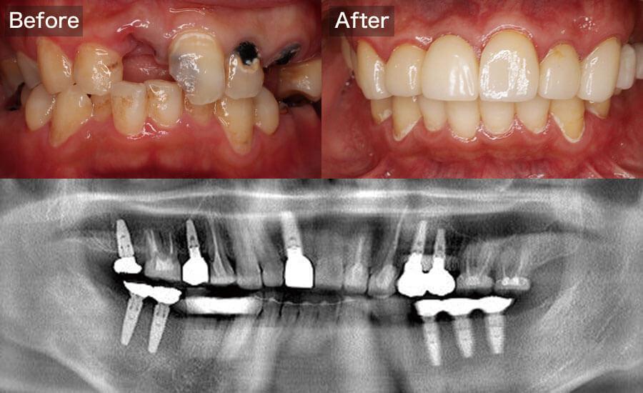 case09.矯正・インプラント治療の術前術後の写真