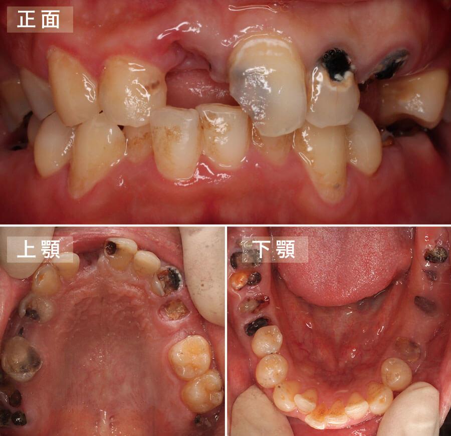 case09.インプラント矯正治療前の口腔内写真