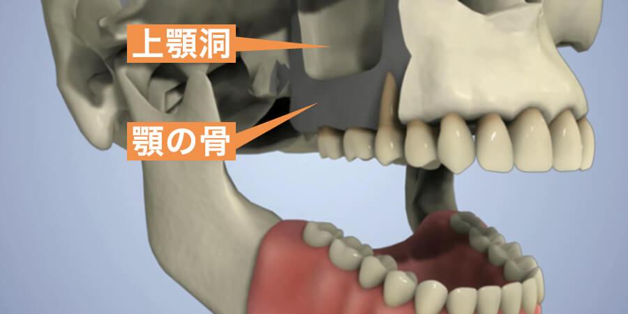 上顎洞の画像
