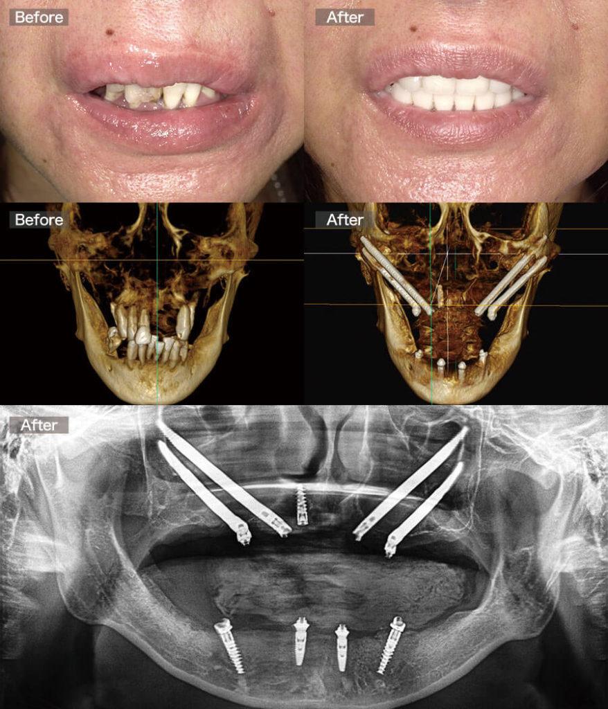 case11allon4-quad-zygoma-implant