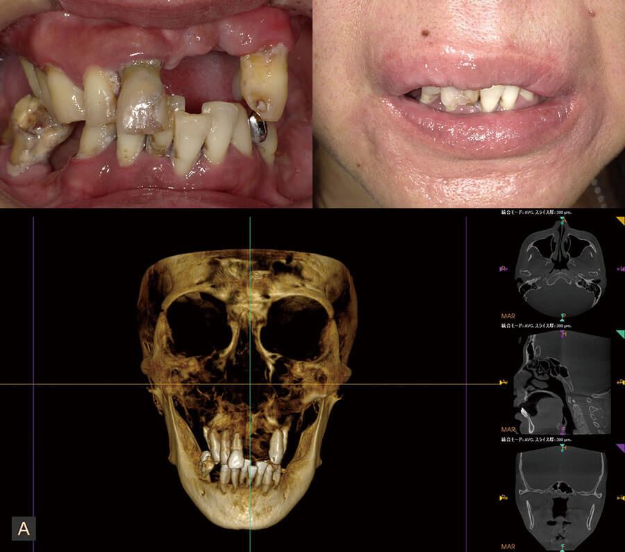 case11before-implant
